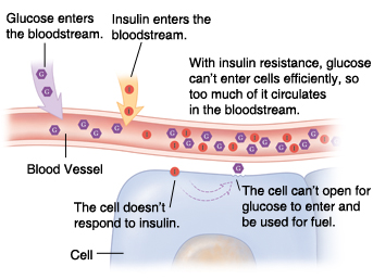 Cross section of blood vessel and cell showing glucose building up in bloodstream because of insulin resistance.