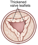 Top view of open pulmonary valve with thickened leaflets.