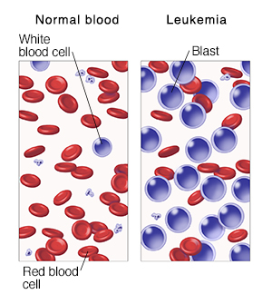 Microscopic view of blood cells comparing normal blood and leukemia.