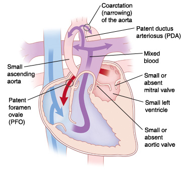 Front view cross section of heart showing hypoplastic left heart syndrome: coarctation (narrowing) of the aorta, patent ductus arteriosus (PDA), small or absent mitral valve, small left ventricle, small or absent aortic valve, patent foramen ovale (PFO), and small ascending aorta. Arrows show blood flowing from left atrium to right atrium through PFO, and mixed blood going from right ventricle to pulmonary artery and into aorta through PDA.