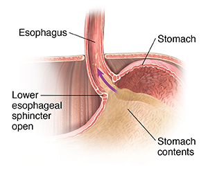 Closeup cross section of top part of stomach, lower esophagus, and diaphragm showing lower esophageal sphincter open, allowing stomach contents to flow into esophagus.