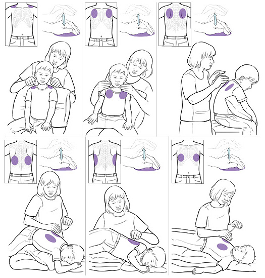 How to do chest percussions to help your child drain mucus from the lungs