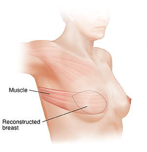 Side view of female chest showing LD flap breast reconstruction.