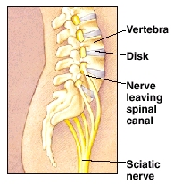 Image showing the sciatic nerve.