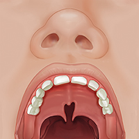 Front view of child's open mouth showing partial cleft palate.